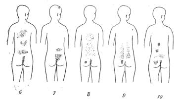 Les taches de pigment sur la personne par le peroxyde